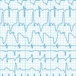Cardiogram — Stock Vector #10040352