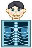 X-ray — Vecteur