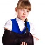 braço quebrado em um elenco — Foto Stock