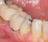 Makro obraz wypełniony zębów — Zdjęcie stockowe