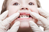 Caries teeth decay — Stock Photo