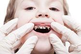 Examining caries teeth decay — Stock Photo