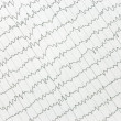 The electrocardiogram of heart — Stock Photo