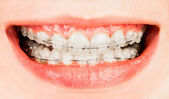 Braces — Stock Photo