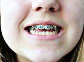 Braces on bad crooked teeth — Stock Photo