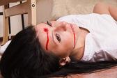 Crime scene imitation. Nurse on the floor — Stock Photo