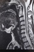 Spine mri — Stock Photo