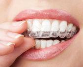Tänder med tandblekning bricka — Stockfoto