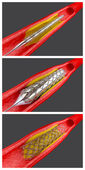 Angioplasty — Foto Stock