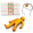 Apoplectic And Epileptic Stroke - Stock Photo