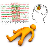 Apoplectic And Epileptic Stroke — Stock Photo