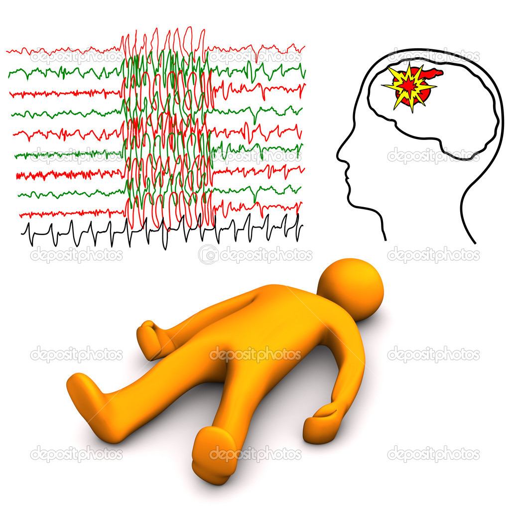 Orange cartoon character with apoplectic or epileptic stroke, on the white background. — Stock Photo #10664141