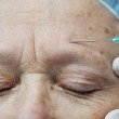 Aged female receiving botox injection in forehead — Stock Photo #10421218