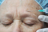 Aged female receiving botox injection in forehead — Stock Photo