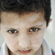 Portrait of poverty, little boy with strong look — Stock Photo #8843679