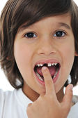Lost milk tooth, cute boy with long hair — Stock Photo