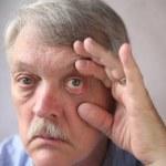 Bloodshot eyes in a senior man — Stock Photo