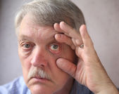 Bloodshot eyes in a senior man — Stock Photo