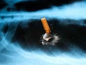 Smoking issues — Stock Photo