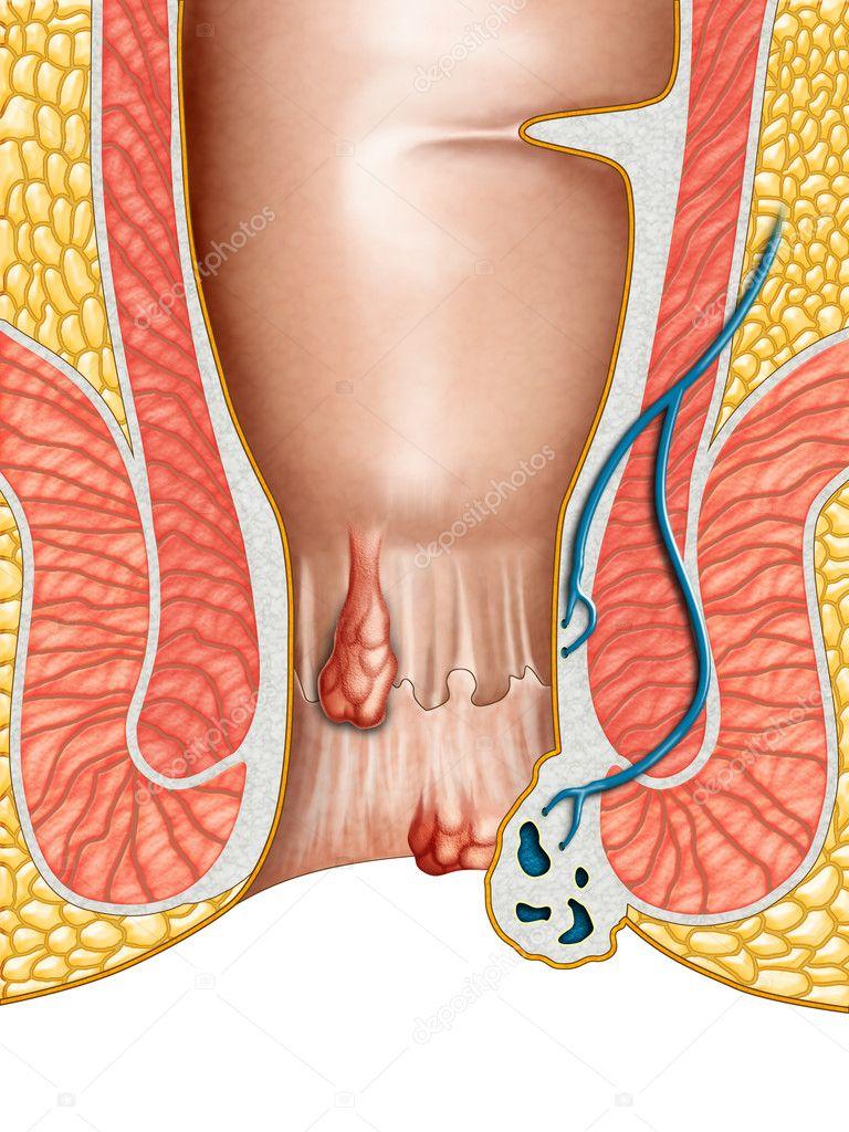 Отек на ноге после операции варикоз вен с ем свзано