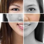 Plastic surgery concept — Stock Photo