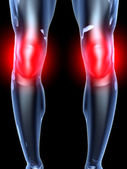 Knee Ache - Anatomy — Stock Photo