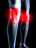 Knee Ache - Anatomy — Stock Photo