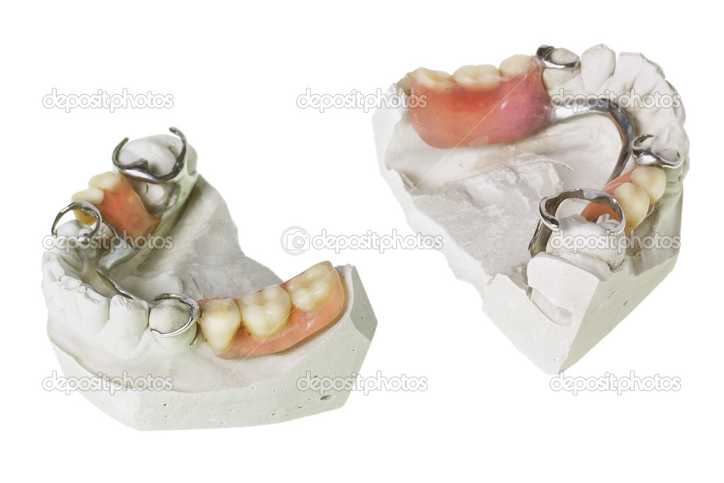 Plaster cast of  teeth and dentures, which is made in this mold isolated macro. Selective focus — Стоковая фотография #10529373