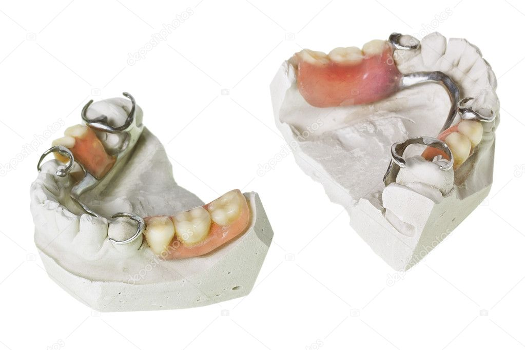 Plaster cast of  teeth and dentures, which is made in this mold isolated macro. Selective focus  Foto Stock #10529373