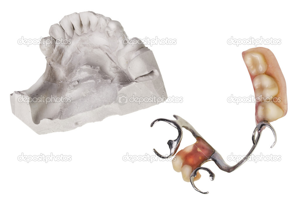 Plaster cast of  teeth and dentures, which is made in this mold isolated macro. Selective focus — Stock Photo #9877759