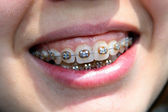 Young woman smile with bracket — Stock Photo