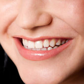Beautiful teeth in a perfect smile — Stock Photo