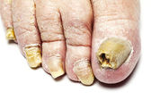 Fungal Nail Infection — Stock Photo