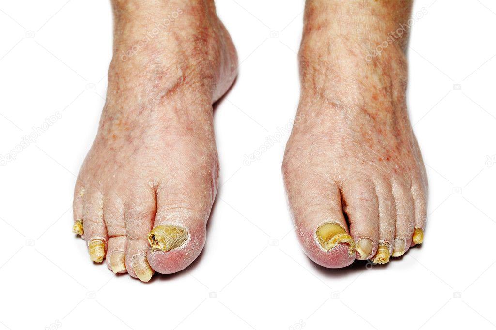 Как бороться ногтевыми грибками на ногах