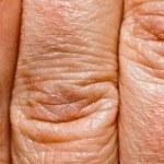 Dry Skin — Stock Photo #8593080