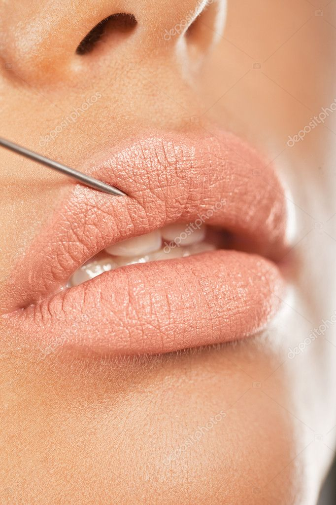 Botox Injection In The Lip. Closeup of a needle giving enhancing botox treatment for fuller lips. — Stock Photo #8362185