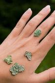 Lichen on the hand — Stock Photo