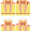 Internal structure of tooth — Stockvector  #9903339