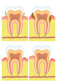 Internal structure of tooth — Stock Vector