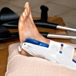 Stock Photo: Broken ankle