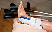 Broken ankle — Stock Photo