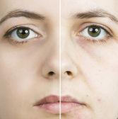 Skin treatment — Stock Photo