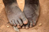 Pieds de l'enfant africain — Photo