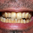 Yellow teeth - Foto Stock
