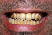 Yellow teeth — Stock Photo