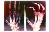 X-ray card. — Stock Photo