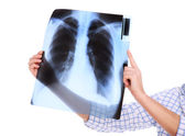 My lungs — Stock Photo