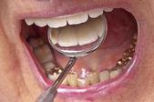 Teeth examination — Stock Photo