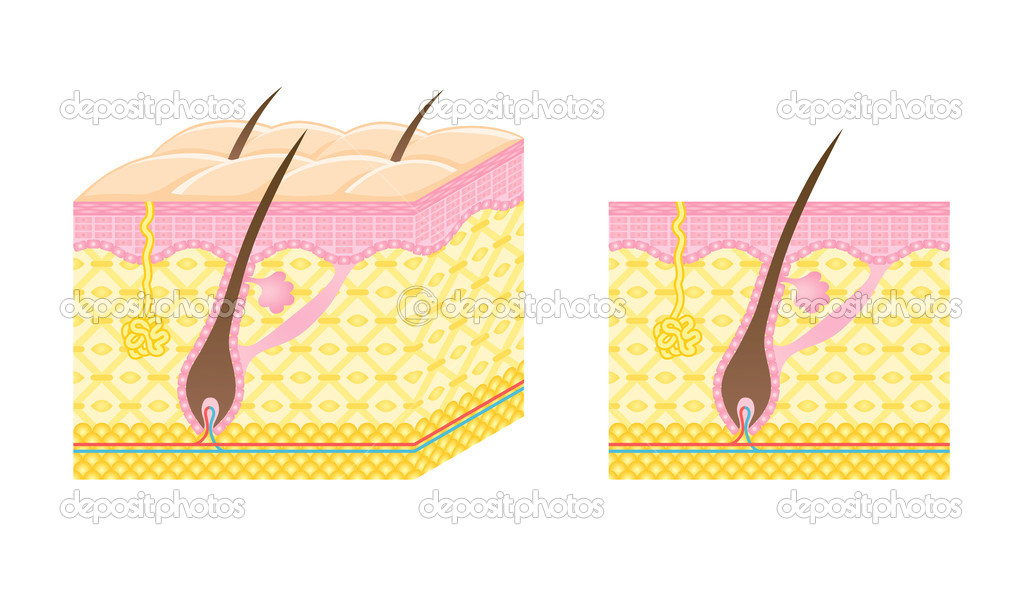 Diagram of a hair follicle.  Stock Photo #7967374