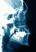 X-ray image of a head — Stock Photo